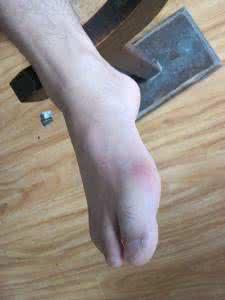 脚痛风,天津哪家医院治疗脚痛风好